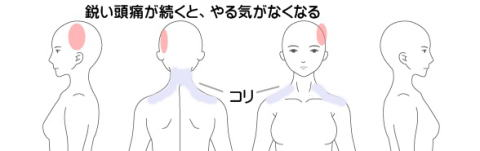 頭痛の症例2(左側頭部)