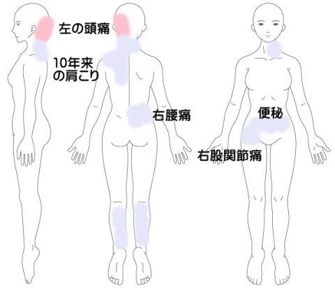 頭痛の症例3(左側頭部)