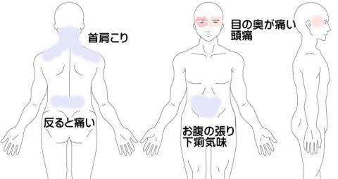 頭痛の症例4(右目の奥の痛み)