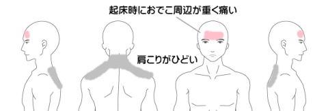 肩こりの症例1(起床時のおでこの頭痛)