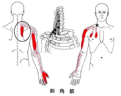 斜角筋のトリガーポイントが原因の肩甲骨の痛み