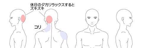 頭痛の症例1