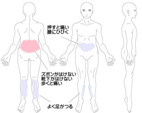 腰痛の症例1