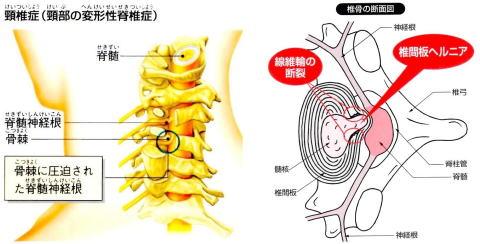 頚椎症・頚椎椎間板ヘルニア