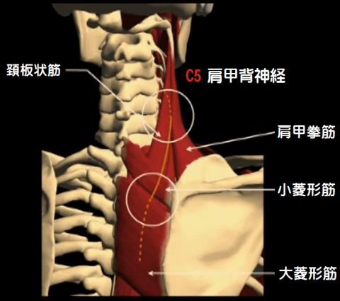 肩甲背神経の障害