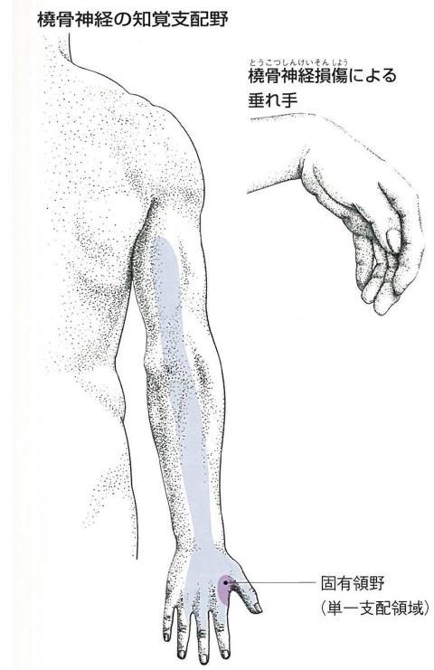 橈骨神経障害