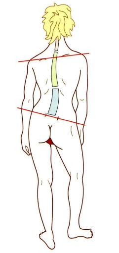 骨盤のゆがみ・脚のバランスが原因の腰痛