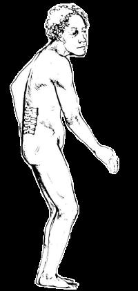 腰のねじり方が原因の腰痛