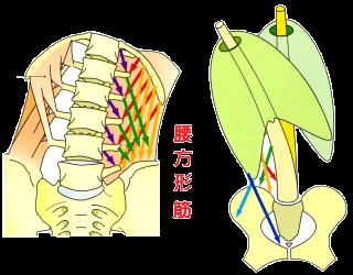 お腹の横を硬くする腰方形筋の緊張