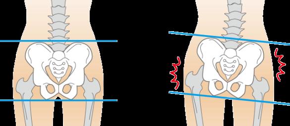 腰痛と骨盤のゆがみ