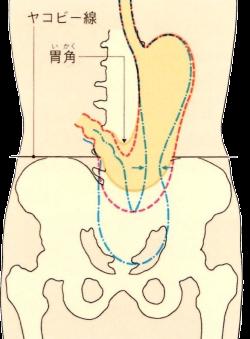 軽度の胃下垂・重度の胃下垂