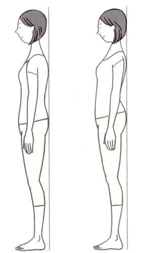 正常な姿勢とストレークネックの姿勢