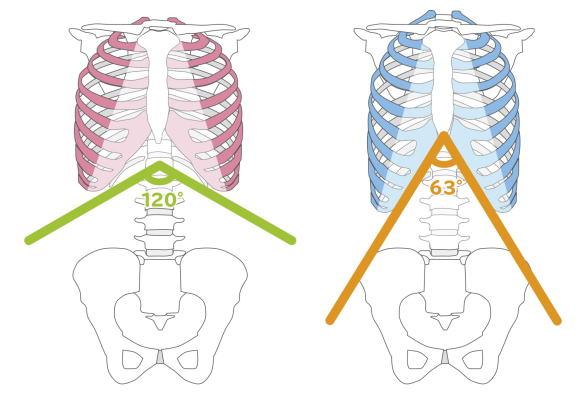 肋骨角と減腔